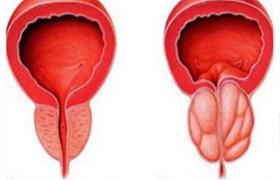 Prävention Prostatitis